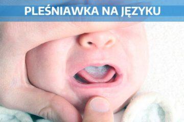 pleśniawka na języku noworodka