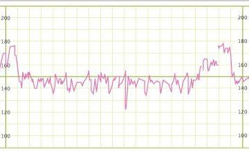 wykres badania ktg w ciazy