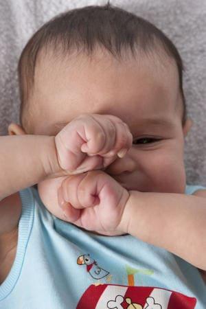niedrożne kanaliki łzowe niemowlęcia